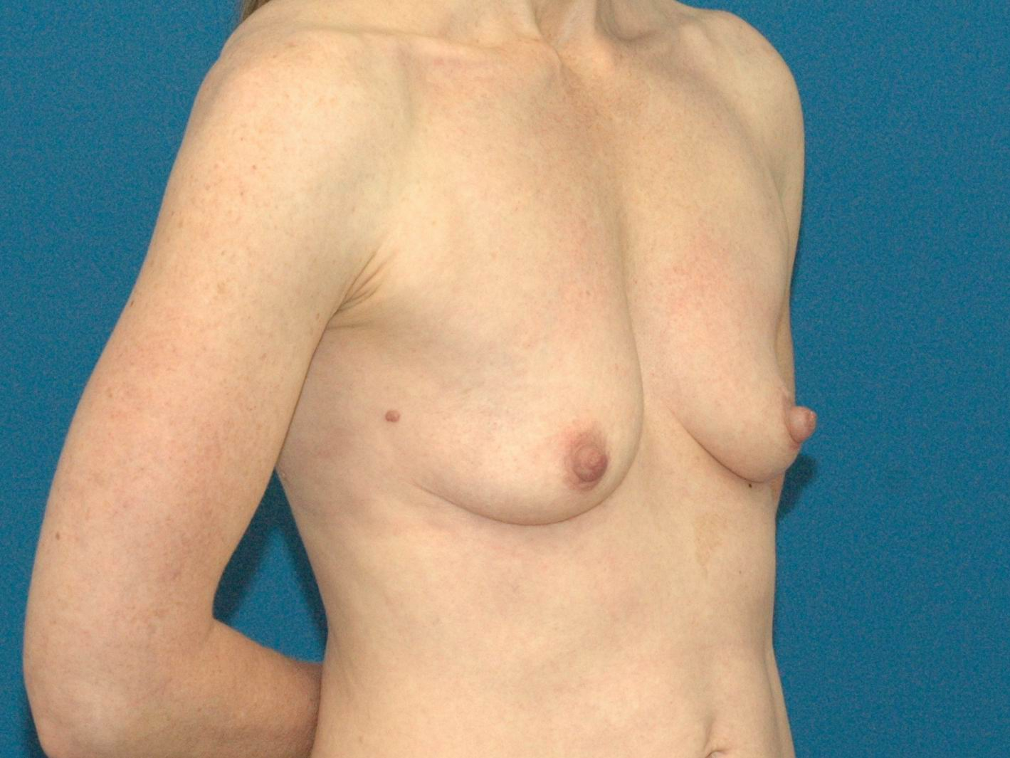 breast-aug-and-lift-3.jpg