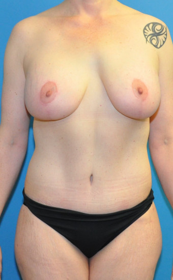 Post op anterior abdomen and breasts cr