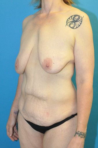 Pre op left oblique cr abdomen and breasts tiny