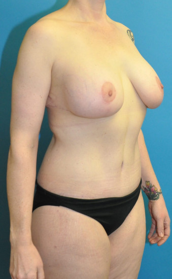 Post op right oblique cr breasts and abdomen tiny