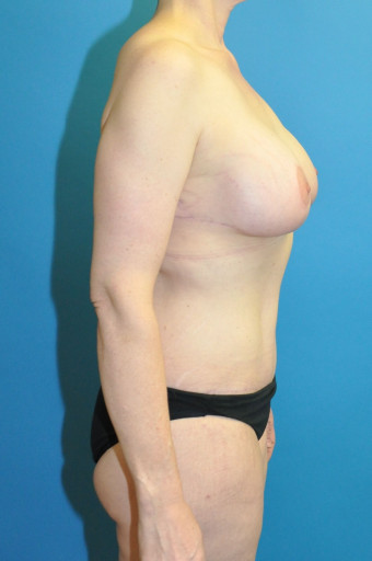 Popst op right lateral breasts and abdomen cr tiny