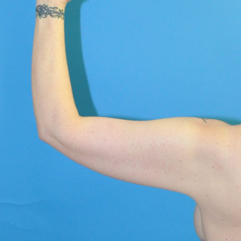 Post op left arm posterior cr