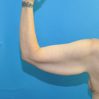 Pre op left arm posterior cr