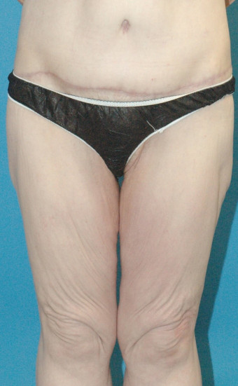 Pre op anterior thighs cropped