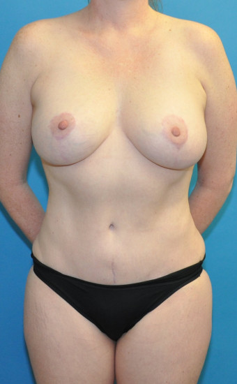 Post op 1.5 years mommy makeover anterior