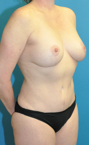 Post op 1.5 years mommy makeover right oblique