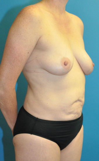 Pre op right oblique mommy makeover